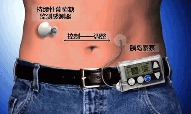 同一部位注射胰岛素治疗效果差